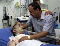 Marwan Barghouti besøker den skadde Fatah-aktivisten Mohamed Abu Halaweh på sykehuset i Ramallah etter angrepet mot bilene de to satt i. (Foto: AP/Nasser Nasser)