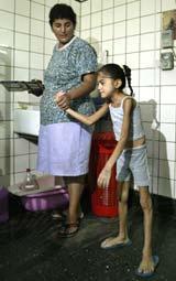 En mor hjelper sin 10 år gamle feilernærte datter, Pamela (foto: Reuters/Enrique Marcarian).