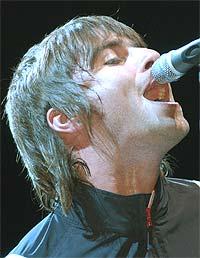 Oasis-vokalist Liam Gallagher får en stor tannlegeregning. Foto: Sebastian Artz / Getty Images.