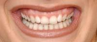 Mange ønekr seg penere tenner og er villige til å betale dyrt for det.