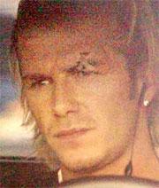 David Beckham sår over venstre øye etter at manager Alex Ferguson sparket en støvel forsuret forholdet mellom de to.
