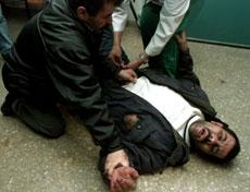 En palestiner mottar førstehjelp på et hospital i Gaza. Foto: Reuters/Mohamed Salem