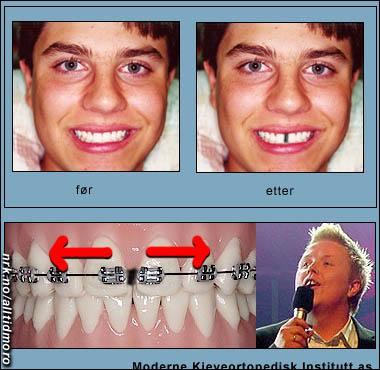 Etter Idol-seieren har tannlegene stor pågang av ungdommer som vil bli som Kurt. (Alltid Moro)