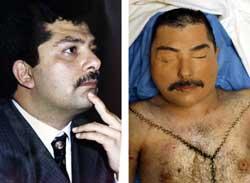 FØR OG ETTER: Qusay Hussein. Foto: Scanpix/Reuters