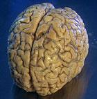 Bare blåbær for hjernen vår?