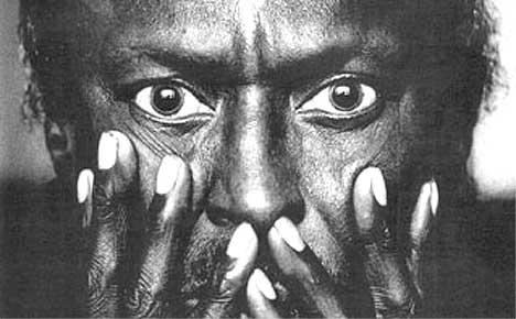 Miles Davis hallisunerte. I tillegg var han paranoid og avhengig av kokain.