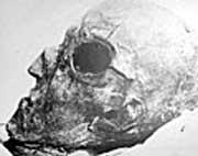 Det har vært mye spekulasjon rundt Karl XIIs død. Brødrene Dal har funnet løsningen på mysteriet.
