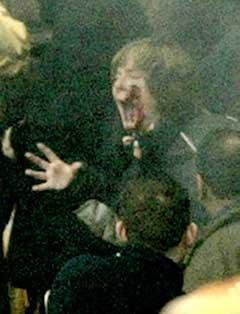 En kvinne på tribunen ble truffet av en rakett under kampen mellom Wolverhampton og Newcastle. (Foto: Reuters/Scanpix)