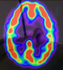 Tinninglappepilepsi har en spesiell bieffekt hos enkelte. Foto: BBC