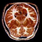 Måling av det magnetiske feltet i hjernen. Foto: BBC