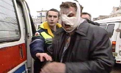 En mann som ble skadet i eksplosjonen får hjelp. (Foto: Reuters)