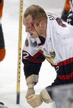 Ottawa Senators Rob går blødende av isen etter masseslagsmålet. (Foto: AP/Scanpix)