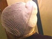 Kvinnens hode måtte bandasjeres kraftig etter overfallet. Foto: Anders Jørgensen, NRK
