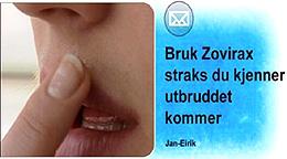 Zovirax hjelper godt mot munnsår. Smør på salven straks du får et utbrudd. Foto: NRK Puls