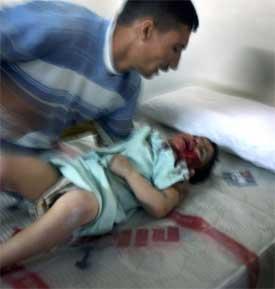 SÅRET: 3 år gamle Nura er en av de mange sårede i kamphandlingene mellom amerikanske soldater og sunnimuslimske opprørere. Sykehusene i byen fortviler over situasjonen. (Foto: AP PHOTO/Muhammed Muheisen)