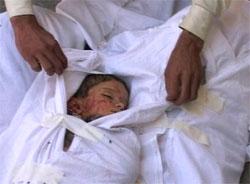 KRIGENS SANNE ANSIKT: Barn og sivile er hardt rammet av kampene i Falluja. (Foto: Reuters/Scanpix)
