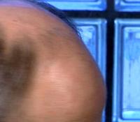 Testosteron er skurken som stjeler håret på hodet.