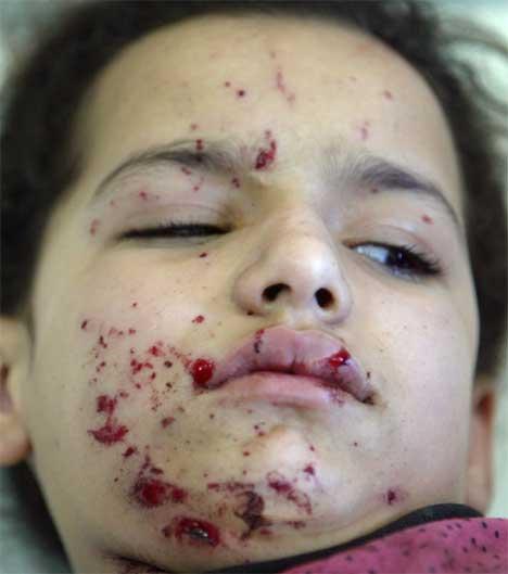 12-årige Sara ble skutt i hånden og i beinet etter at det amerikanske kjøretøyet eksploderte. (Foto: Scanpix / Reuters / Faleh Kheiber)