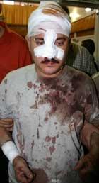 Mange drept, minst 50 såret i Bagdad (Foto: S. Arar, AFP)
