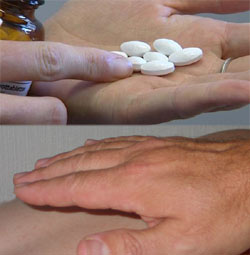 Håndspåleggelse tappet kroppen for energi, mente healeren. For å motvirke kramper rådet han henne til å ta kalium. Det skulle bli skjebnesvangert for kvinnen.