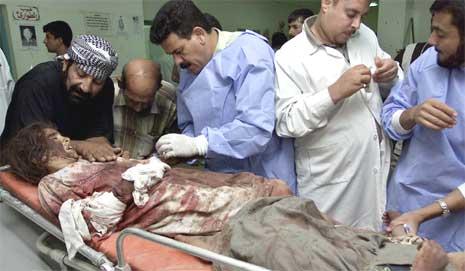 En skadd irakisk jente blir behandlet på sykehuset i Falluja i dag. (Foto: Reuters/Scanpix)