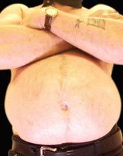 Overvekt midtveis i livet øker sjansene for demens senere i livet. Foto: Scanpix