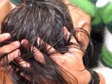 Det er uvisst hvorfor noen kan oppleve flekkvis håravfall. Vanligvis kommer håret tilbake etter noen måneder.