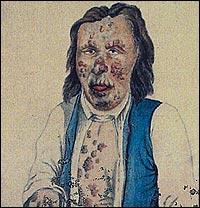 Olof Andersson frå Sogndal var ein av dei mange som vart råka av den fryktelege sjukdomen. (Akvarell frå St. Jørgens hospital)