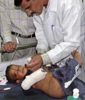 En to år gammel gutt i Falluja får legebehandling etter at huset han var i ble ødelagt i et bombeangrep før det amerikanske angrepet. (Foto: Reuters/Scanpix)