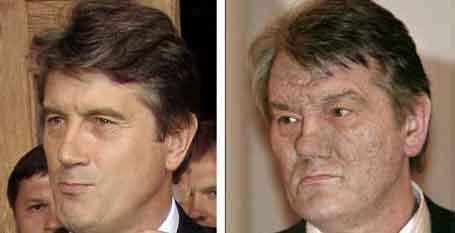 UKRAINA: Viktor Jusjtsjenko før og etter. Scanpix)