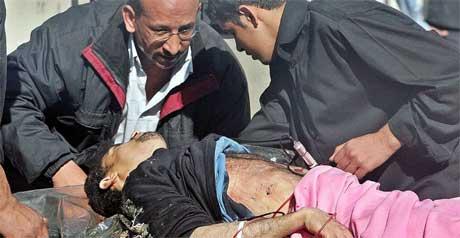En mann som ble såret i et av angrepene fredag, får behandling ved Yarmouk-sykehuset. (Foto: Scanpix / Reuters / Faleh Kheiber)
