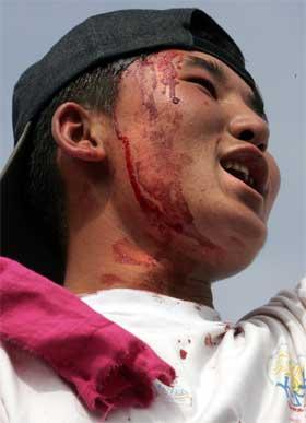 En skadd demonstrant i dagens kamper. (Foto: Scanpix / AFP)