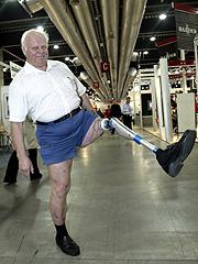 Kanskje kan du få deg ny protese som frynsegode. Foto: Bjørn Sigurdsøn / SCANPIX