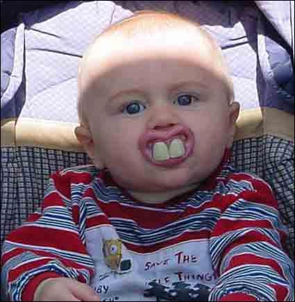 Dette bildet skal visstnok være ekte, og vise en barnesmokk. Med denne får barnet ditt garantert mye oppmerksomhet. (Kilde: ukjent)