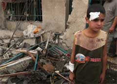 En liten gutt står skadet i en av Bagdads gater (Foto: Scanpix/AP/H. Mizban