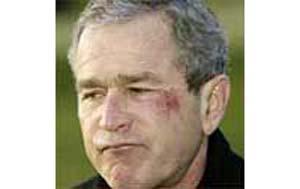 2002: Bush forklarer skrubbsårene i ansiktet med at han satte en saltkringle fast i halsen, besvimte, og slo hodet i bordplaten. (ekte)