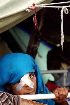 Denne skadde jenta har iallefall tak over hovudet. (Foto: AFP/Scanpix)