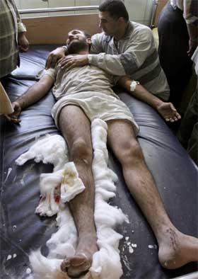 En irakisk mann, såret i en bombeeksplosjon, tas hånd om av et familiemedlem på et sykehus i Bagdad. (Foto: Thaier Al-Sudani/Reuters/Scanpix)