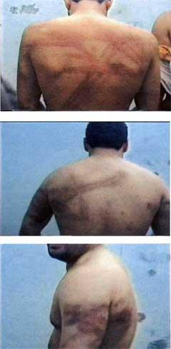 Disse bildene er lagt fram som bevis på tortur. (Foto: AFP/Scanpix)