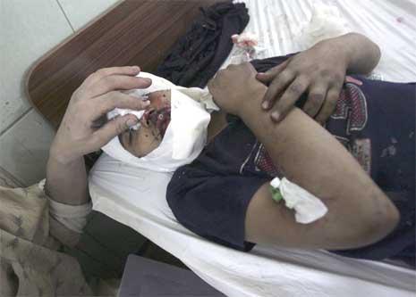 Et av bombeofrene på sykehus i Bagdad etter bilbomben. (Foto: Reuters/Scanpix)