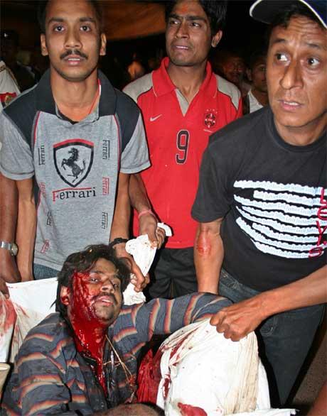 Ein skadd mann blir teken hand om etter eksplosjonen i eit hindutempel i Varanasi i India. (Foto: AP/Scanpix)