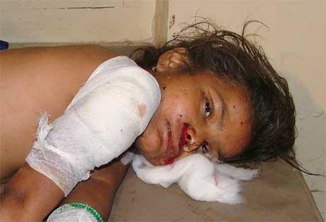 Denne vesle jenta var ei av over 60 skadde i eksplosjonane i Varanasi. Minst 15 miste livet. (Foto: AP/Scanpix)