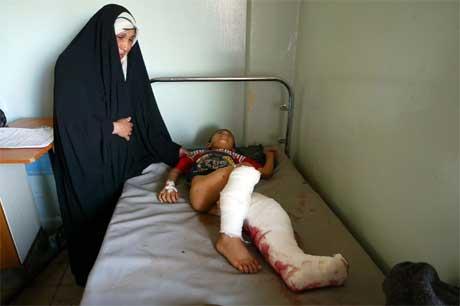 En mor ved siden av sin sønn i sykehussengen. Gutten ble såret i en bombeeksplosjon ved Baquba. Fire mennesker ble drept og ti såret i hendelsen. (Foto: Ali Yussef/ AFP/ Scanpix)