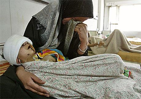 Barn skadd av klasebombe i Irak. Foto: Scanpix
