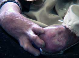 FORKRØPLET FOR ALLID: Så ille kan hender som har tatt i en klasebombe bli. Foto: NRK
