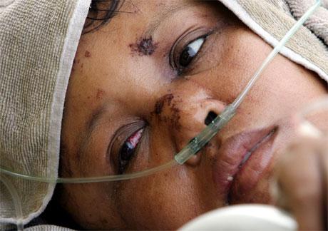 Denne kvinna er ei av fleire titusen skadde i katastrofen. (Foto: AFP/Scanpix)