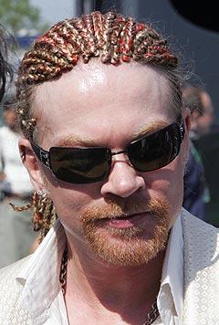 Axl Rose i norgesklare Guns N' Roses må i følge avisa The Sun ha oksygen for å klare å gjennomføre konserter. Foto: AFP Photo / Scanpix.
