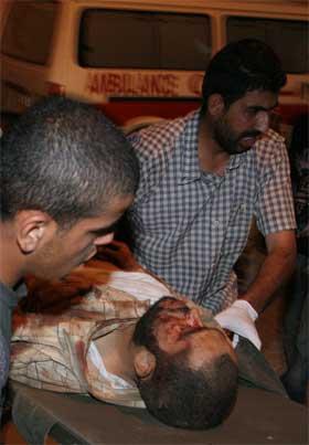 En såret palestinsk mann fraktes til sykehus etter angrepet. (Foto: Said Khatib/AFP/Scanpix)