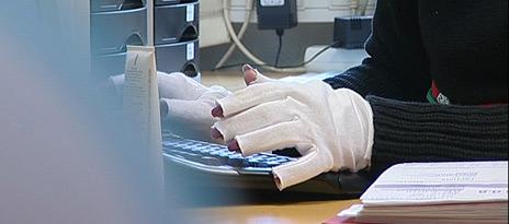 Svetting og frostanfall etter operasjonen gjør at Hilde Ekeberg må bruke vanter på jobb.