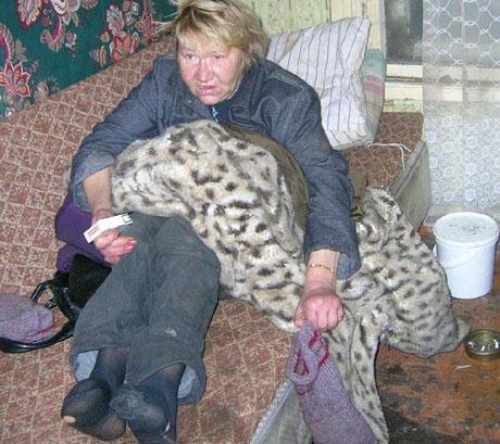 Denne kvinnen i Kopli i Estland har koldbrann i føttene (foto: NRK / Miriam Wicklund).